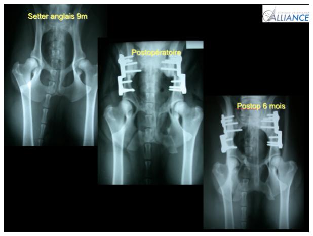 chirurgie-dysplasie-hanche-traitement-2