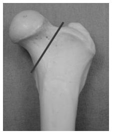 chirurgie-dysplasie-hanche-traitement-3
