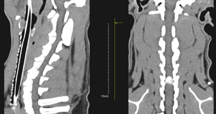 Hernie discale cervicale entre la 5ème et la 6ème vertèbre cervicale entrainant une paralysie des 4 membres