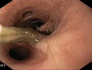 Epillet figure 3