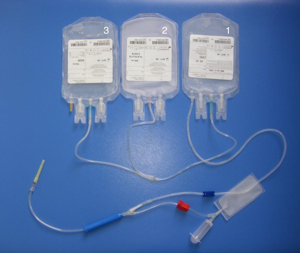 Système de collecte à trois poches. La première sert à collecter le sang total. La deuxième recueille le plasma une fois la centrifugation effectuée. La troisième contient l'additif qui sera ajouté au concentré globulaire.
